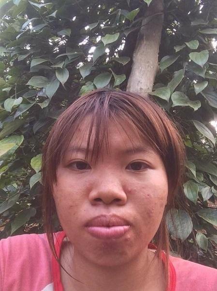 Quách Thị Kim Phượng trước khi làm phẫu thuật thẩm mỹ. Ảnh: Nhân vật cung cấp.