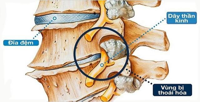 Đốt sống là trụ bao phủ tủy sống và các dây thần kinh.